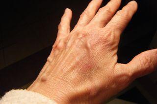 Ugly hand1